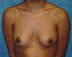 Breast Augmentation Gallery - Patient 5946305 - Image 1