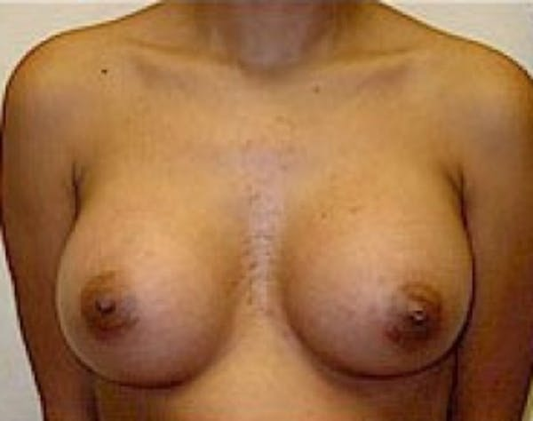 Breast Augmentation Gallery - Patient 5946305 - Image 2