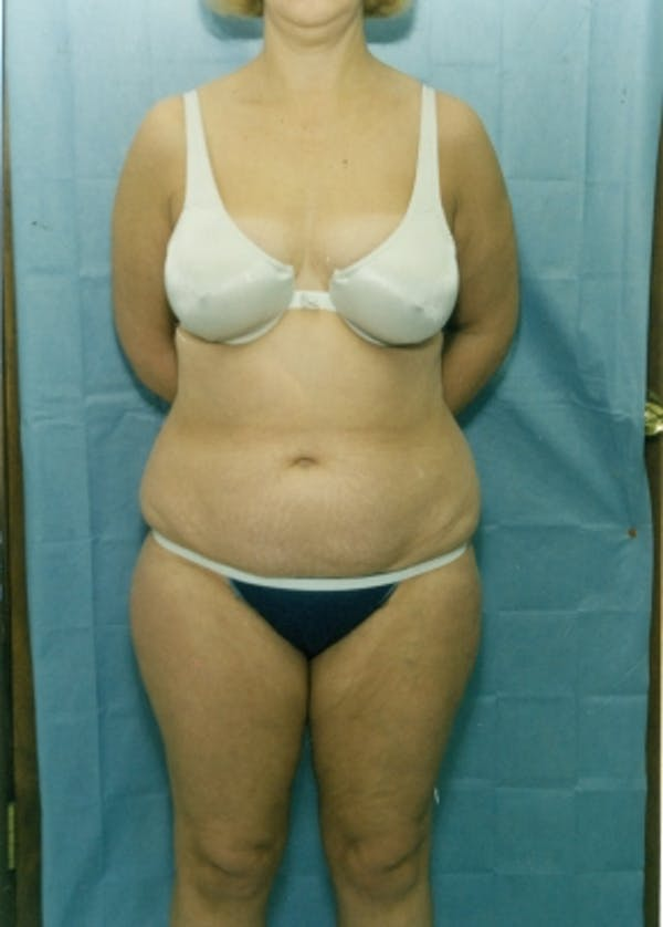 Liposuction and Smartlipo Gallery - Patient 5946306 - Image 1