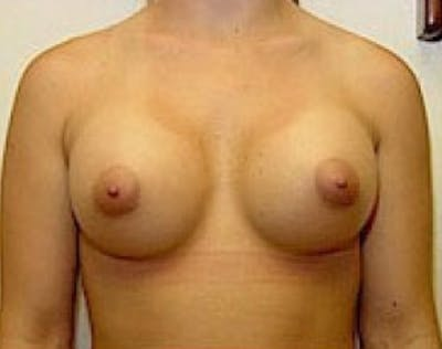 Breast Augmentation Gallery - Patient 5946309 - Image 68