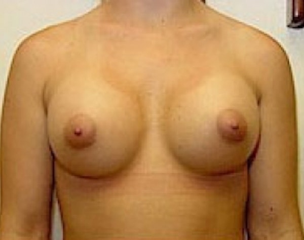 Breast Augmentation Gallery - Patient 5946309 - Image 2