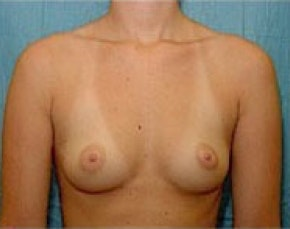 Breast Augmentation Gallery - Patient 5946317 - Image 1