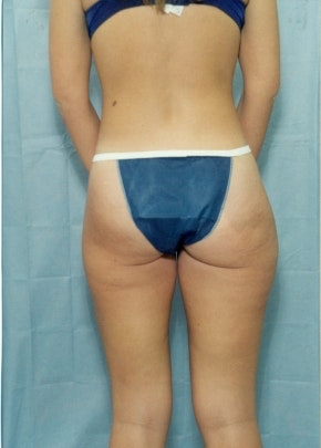 Liposuction and Smartlipo Gallery - Patient 5946320 - Image 1