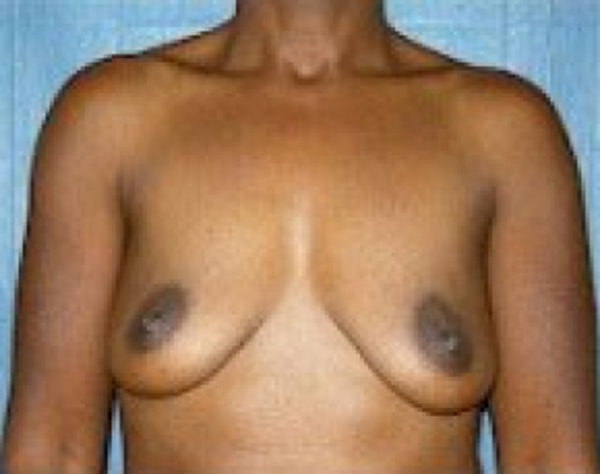 Breast Augmentation Gallery - Patient 5946333 - Image 1