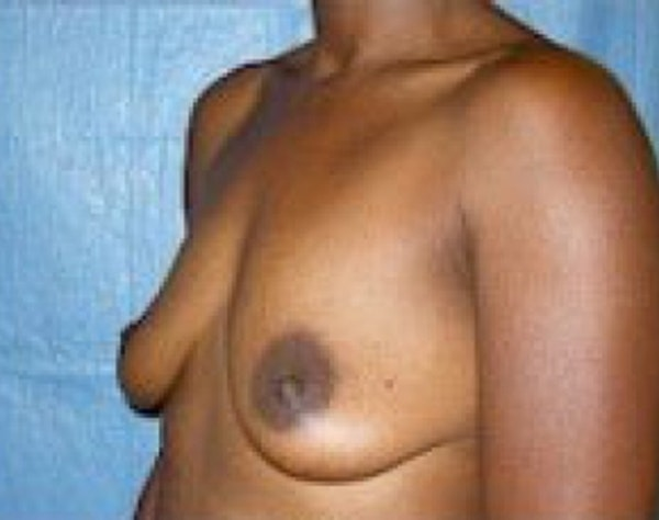 Breast Augmentation Gallery - Patient 5946333 - Image 3