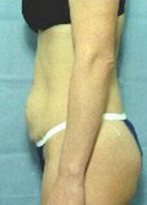 Tummy Tuck Gallery - Patient 5946329 - Image 1
