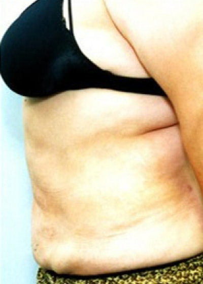 Liposuction and Smartlipo Gallery - Patient 5946332 - Image 2