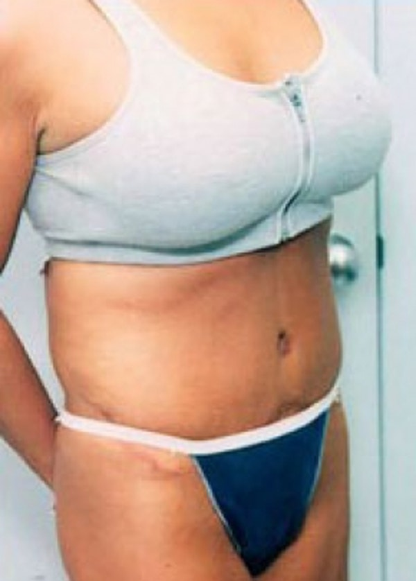Tummy Tuck Gallery - Patient 5946337 - Image 2