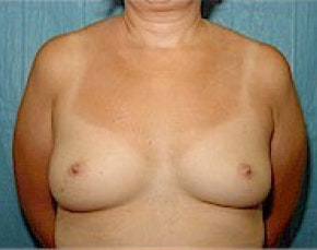 Breast Augmentation Gallery - Patient 5946343 - Image 1
