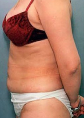 Liposuction and Smartlipo Gallery - Patient 5946339 - Image 2