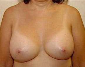 Breast Augmentation Gallery - Patient 5946343 - Image 2