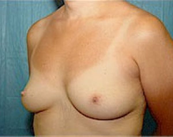 Breast Augmentation Gallery - Patient 5946343 - Image 3