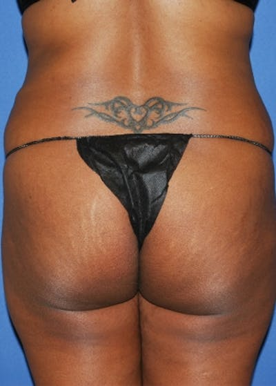 Brazilian Butt Lift Gallery - Patient 5946344 - Image 1
