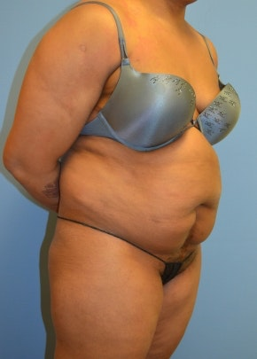 Liposuction and Smartlipo Gallery - Patient 5946345 - Image 1