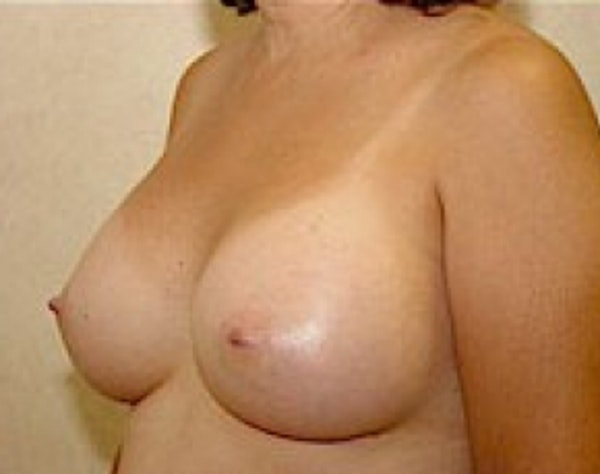 Breast Augmentation Gallery - Patient 5946343 - Image 4