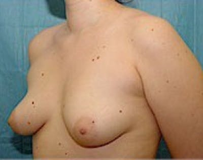 Breast Augmentation Gallery - Patient 5946354 - Image 1