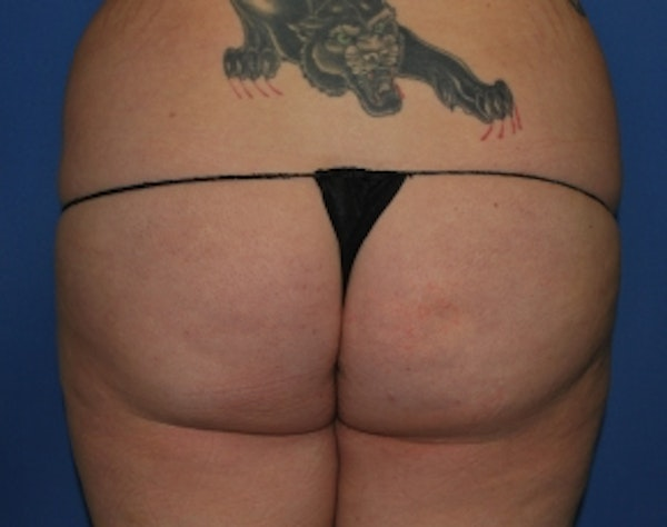 Brazilian Butt Lift Gallery - Patient 5946463 - Image 1