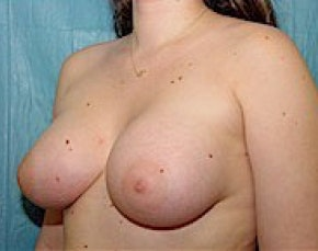 Breast Augmentation Gallery - Patient 5946354 - Image 2