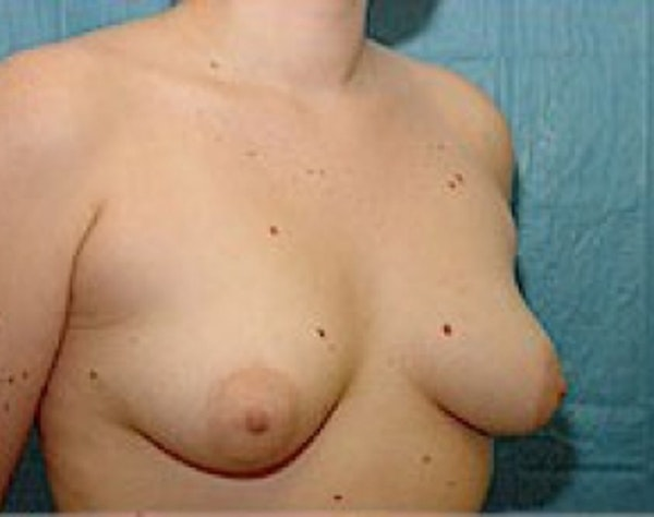 Breast Augmentation Gallery - Patient 5946354 - Image 3
