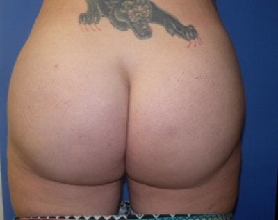 Brazilian Butt Lift Gallery - Patient 5946463 - Image 2
