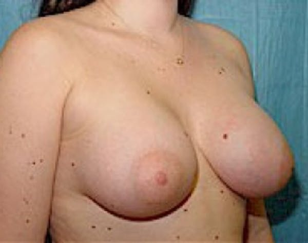 Breast Augmentation Gallery - Patient 5946354 - Image 4