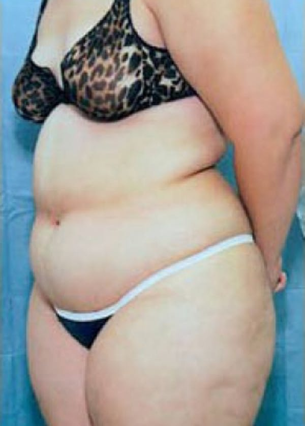 Liposuction and Smartlipo Gallery - Patient 5946393 - Image 1