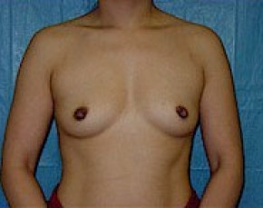 Breast Augmentation Gallery - Patient 5946453 - Image 1
