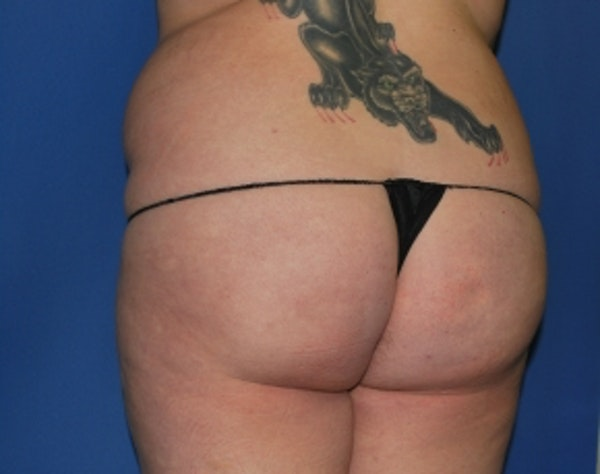 Brazilian Butt Lift Gallery - Patient 5946463 - Image 5