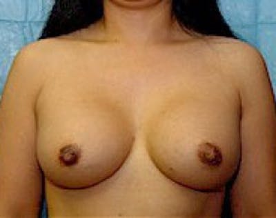 Breast Augmentation Gallery - Patient 5946453 - Image 2
