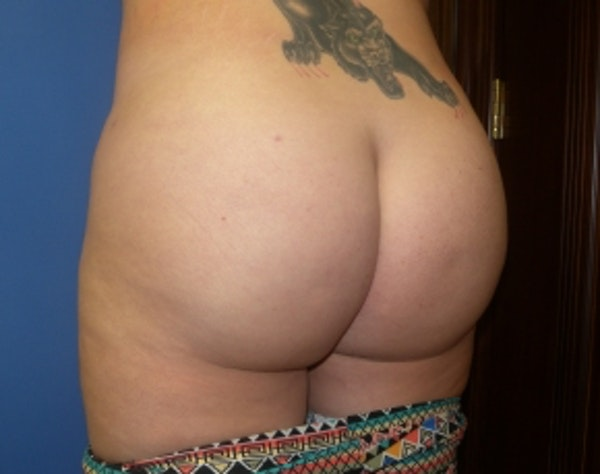 Brazilian Butt Lift Gallery - Patient 5946463 - Image 6