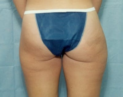 Liposuction and Smartlipo Gallery - Patient 5946456 - Image 1
