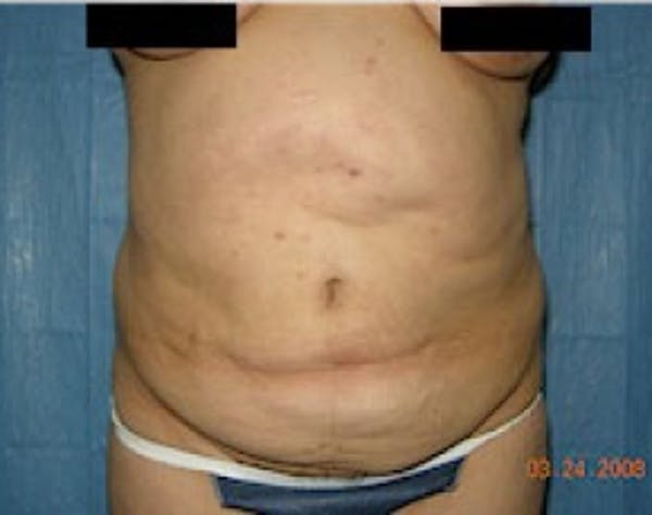 Tummy Tuck Gallery - Patient 5946468 - Image 1