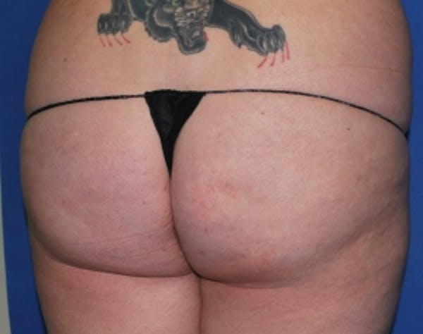Brazilian Butt Lift Gallery - Patient 5946463 - Image 7