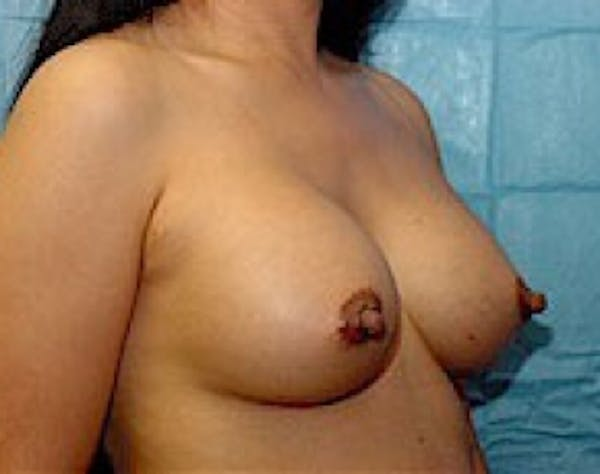 Breast Augmentation Gallery - Patient 5946453 - Image 4