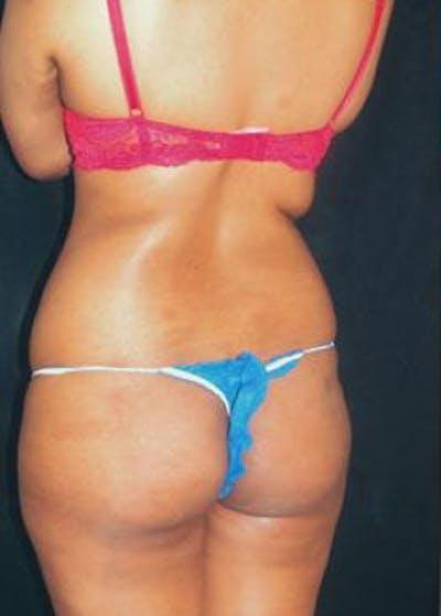 Brazilian Butt Lift Gallery - Patient 5946517 - Image 1
