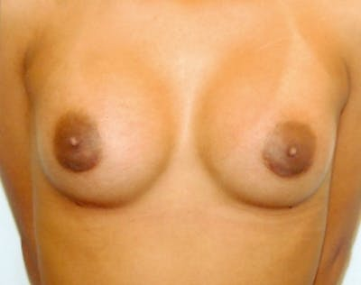 Breast Augmentation Gallery - Patient 5946505 - Image 74