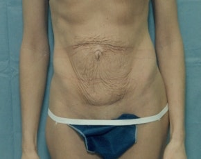 Tummy Tuck Gallery - Patient 5946568 - Image 1