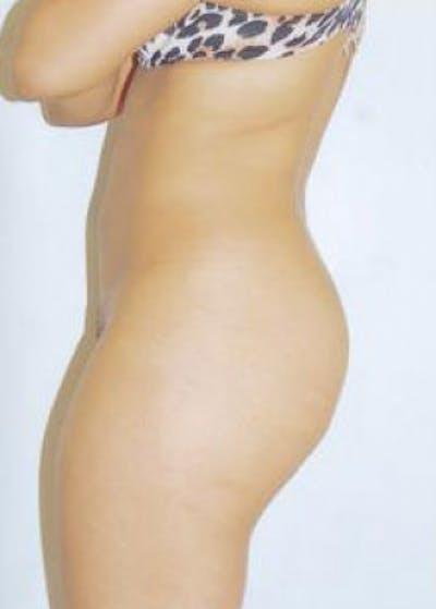 Brazilian Butt Lift Gallery - Patient 5946566 - Image 1