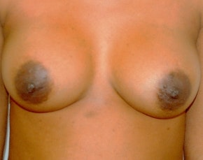 Breast Augmentation Gallery - Patient 5946558 - Image 2