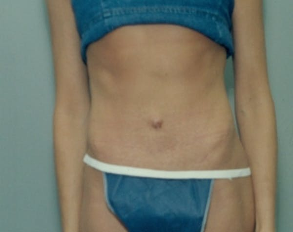 Tummy Tuck Gallery - Patient 5946568 - Image 2