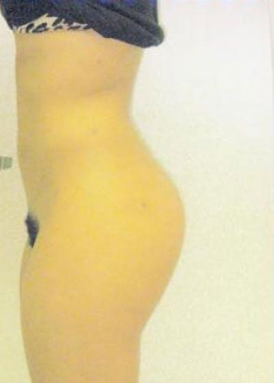 Brazilian Butt Lift Gallery - Patient 5946566 - Image 2