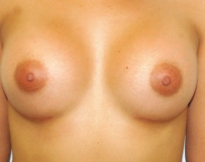 Breast Augmentation Gallery - Patient 5946595 - Image 2