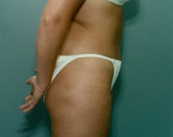 Liposuction and Smartlipo Gallery - Patient 5946598 - Image 2