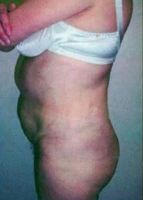 Brazilian Butt Lift Gallery - Patient 5946599 - Image 2