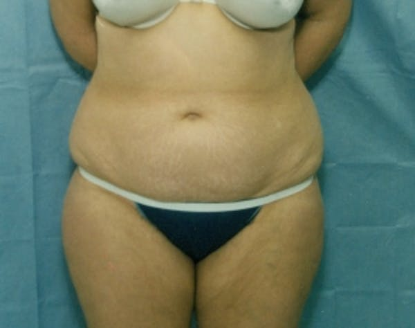 Liposuction and Smartlipo Gallery - Patient 5946606 - Image 1