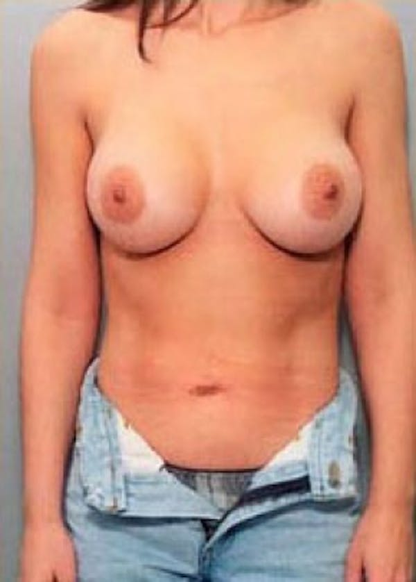 Breast Augmentation Gallery - Patient 5946604 - Image 2