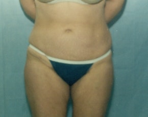 Liposuction and Smartlipo Gallery - Patient 5946606 - Image 2