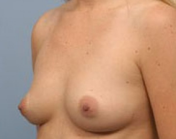 Breast Augmentation Gallery - Patient 5946612 - Image 1