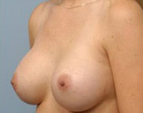 Breast Augmentation Gallery - Patient 5946612 - Image 2