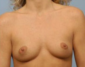 Breast Augmentation Gallery - Patient 5946621 - Image 1